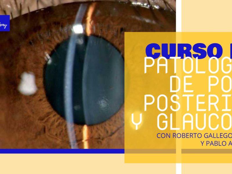 Patología de Polo Posterior y Glaucoma – Curso Monográfico