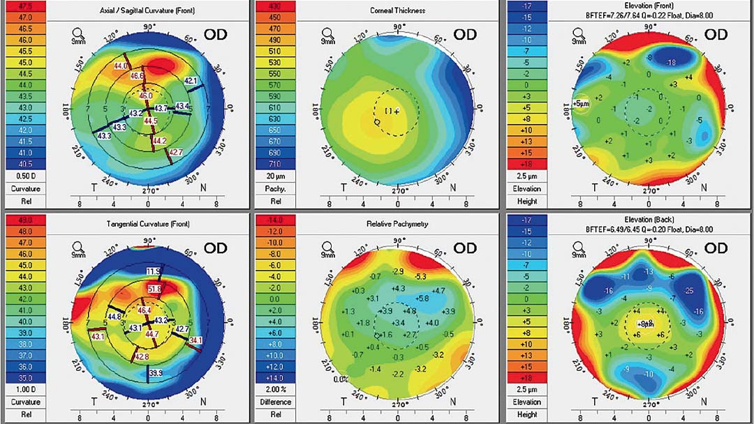 imagenes de topografias corneales_optocademy