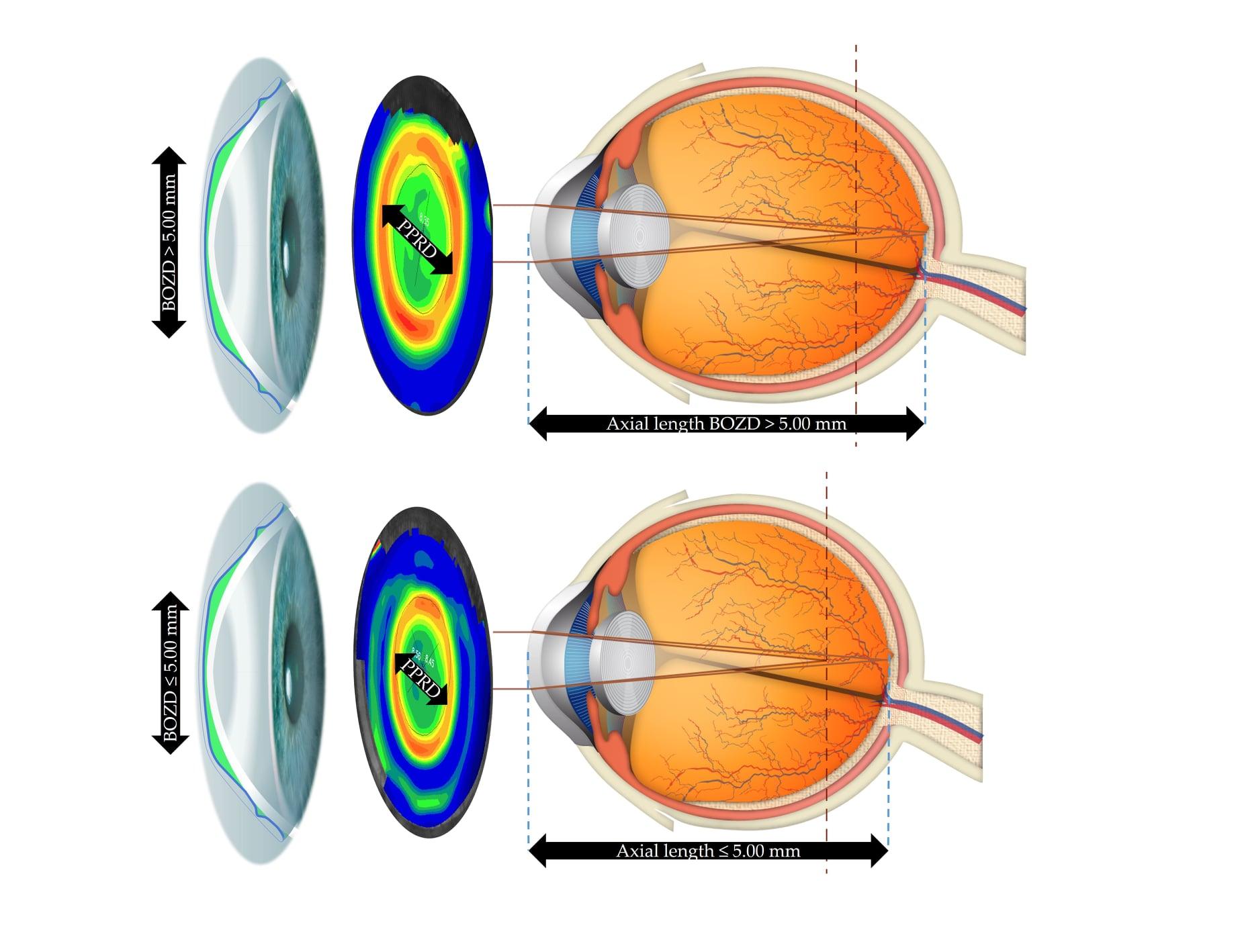 Diámetro de zona optica posterior y control de la miopía – Jaume Pauné