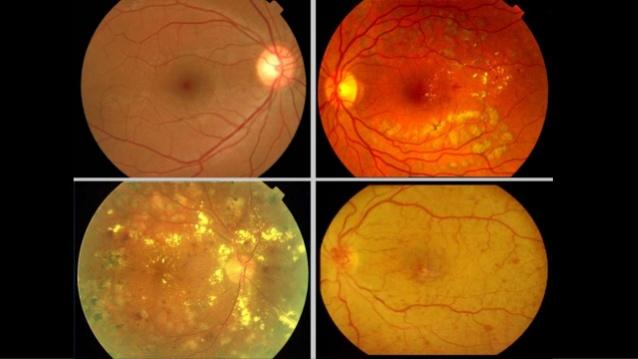 Manifestaciones Oculares de Enfermedades sistémicas – Curso Monográfico